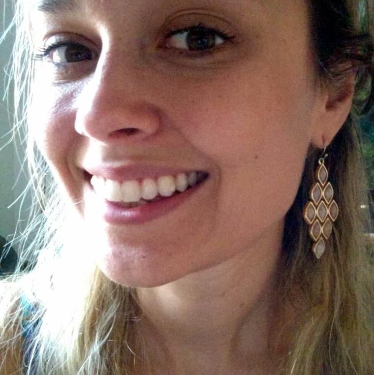 Bumpy shiny Invisalign-y smile!