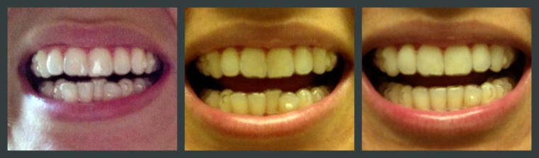 From left to right: Day 1 of with Invisalign, halfway through, and my last tray!